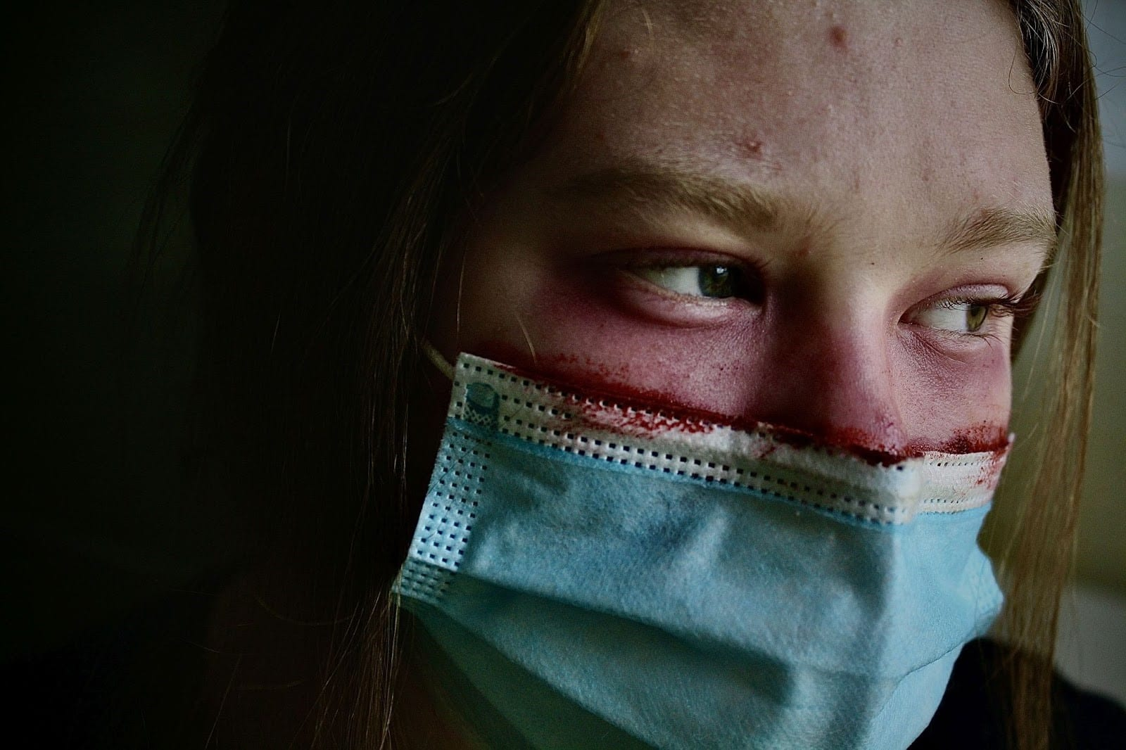 Photo of a person wearing a blue surgical mask looking to the right.